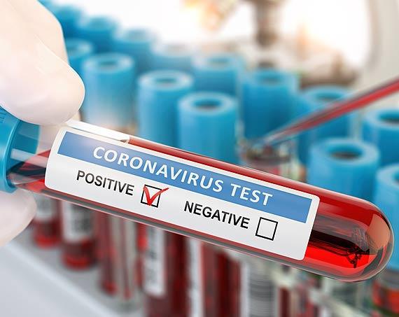 Młoda kobieta, mężczyzna i dziecko ze Świnoujścia - zakażenia wirusem SARS-CoV-2. Stan na godz: 10:00
