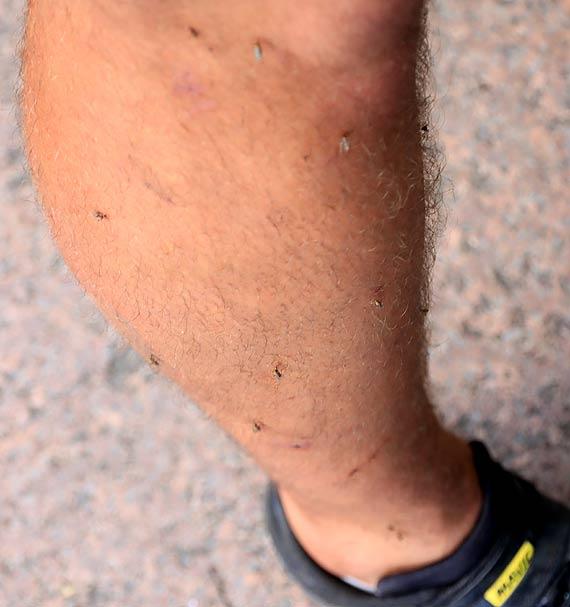 Urzędnicy prezydenta dają tylko dobre rady na komary. Trzeba je zaakceptować?
