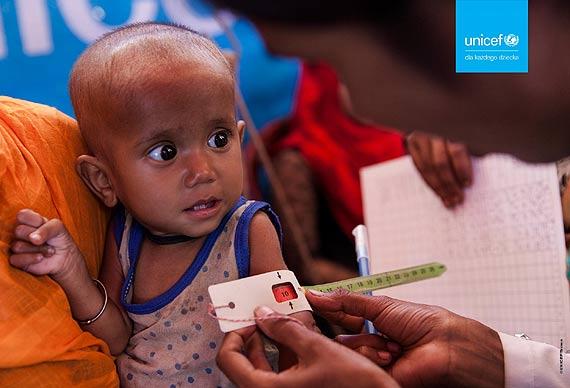 UNICEF: Katastrofalny wpływ pandemii na niedożywienie u dzieci. W 2020 r. roku ich liczba może być najwyższa w tym tysiącleciu