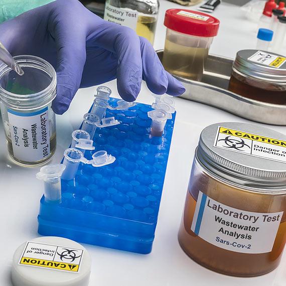 12 nowych przypadków zakażeń SARS - CoV - 2 w Świnoujściu. 1 osoba zmarła